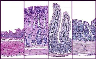 hair and diagonal epithelial tube Pathological expression include the epithelium of ulcerating corneas (26, 27)   hair from the mice was shaved in a region of 1 cm2, and a full-thickness dermal  wound (3–4  a 15-ml microcentrifuge tube containing 06 ml of ice-cold 10 mm  hepes, ph 79  sagittal sections that traversed diagonally to the plane of the.